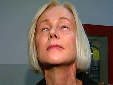 ศัลยกรรมทำพิษ! สาวมะกันฟ้องหมอ กรีดตาแล้วปิดไม่ได้