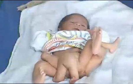 ตะลึง! แม่ชาวปากีสถาน ให้กำเนิดทารก 6 ขา