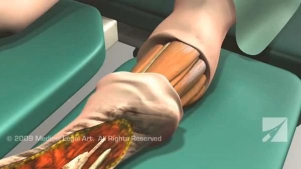 เปิดคลิปขั้นตอนการตัดขาบริเวณใต้เข่า