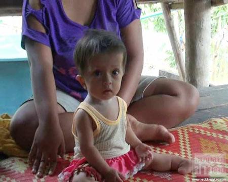 วอนช่วยหนูน้อย 1 ขวบ ป่วยกระดูกกรอบ-ขาหัก 7 ครั้ง
